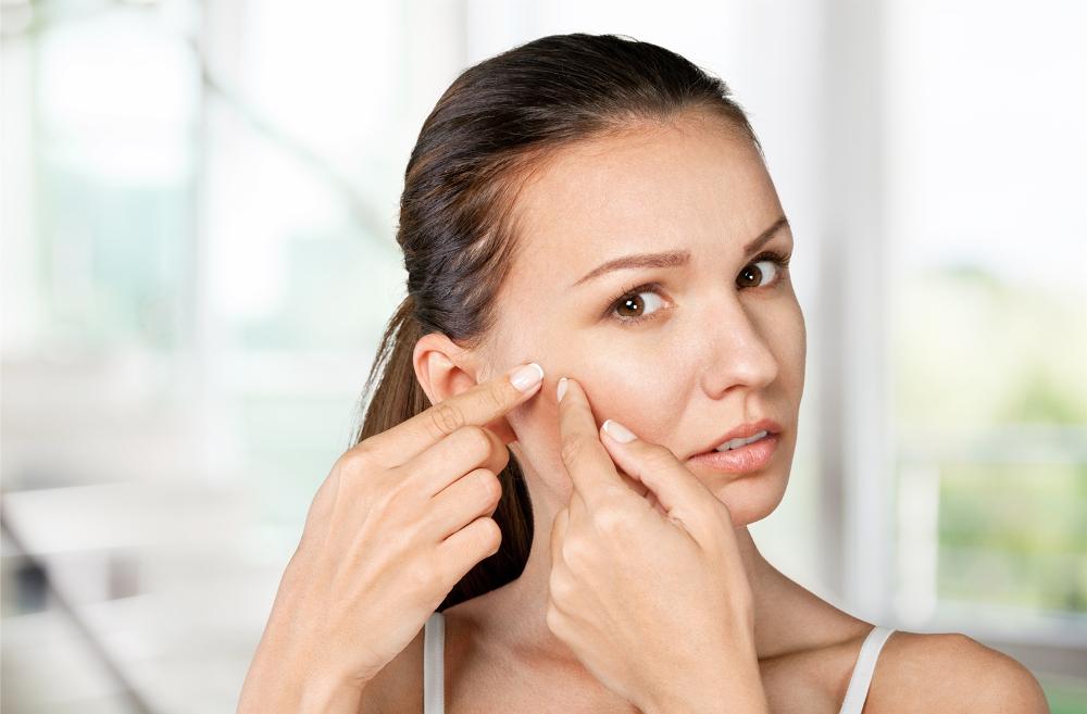 kosmetyki z siarką na trądzik