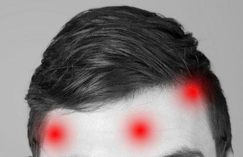 krem na zaczerwienienia twarzy dla mężczyzn