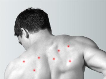 Jak pozbyć się trądziku na plecach?